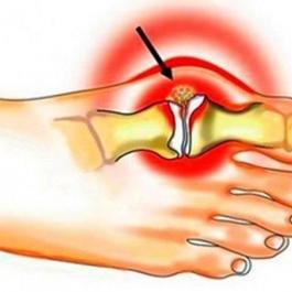 Косточка на ноге: лечение и профилактика