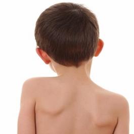 Опасность сколиоза у детей